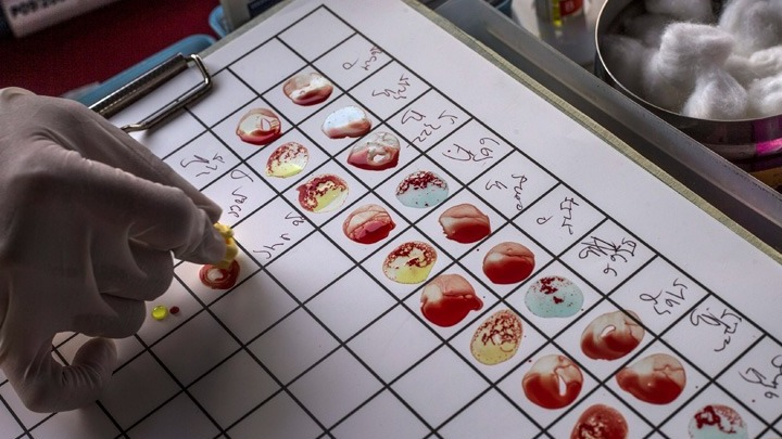 Αρχίζει η μεγαλύτερη παγκοσμίως δοκιμή ενός τεστ αίματος για ανίχνευση περισσότερων από 50 ειδών καρκίνου